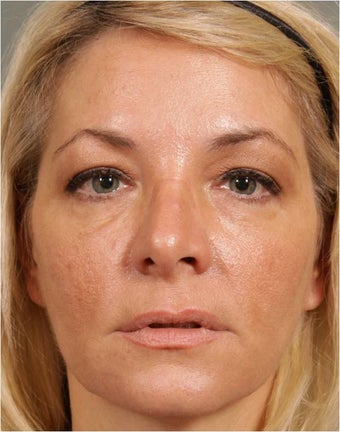 47 year old female treated for loss of volume under eyes, cheeks, and lips after 791059