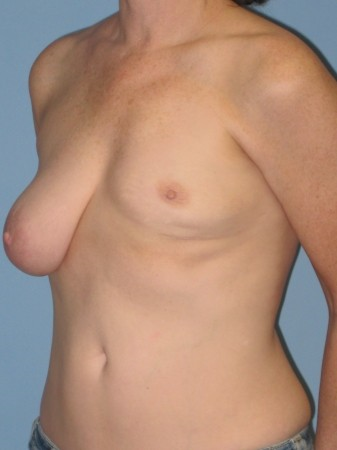 Breast Reconstruction before 963244