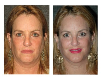Facelift and Chin Implant for Dramatic Improvement in Jawline and Neck 896443
