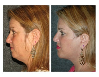 Facelift and Chin Implant for Dramatic Improvement in Jawline and Neck before 896443