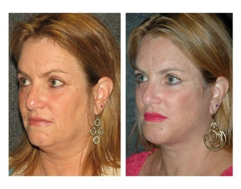 Facelift and Chin Implant for Dramatic Improvement in Jawline and Neck after 896443