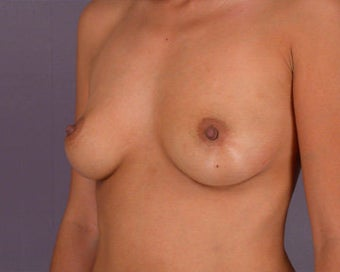 Breast Augmentation before 281410