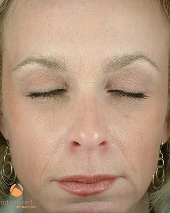 Female Patient Treated with BOTOX® Cosmetic after 1047033
