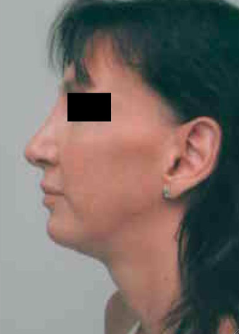 Chin Implant after 724320