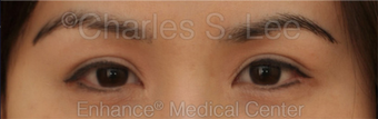 Asian Eyelid Surgery after 815801