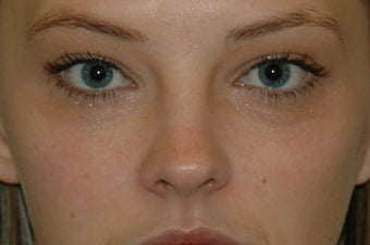 Restylane injected under the eyes before 577178