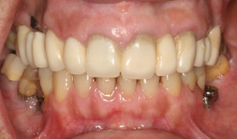 Full mouth reconstruction, bad dental implants 744976