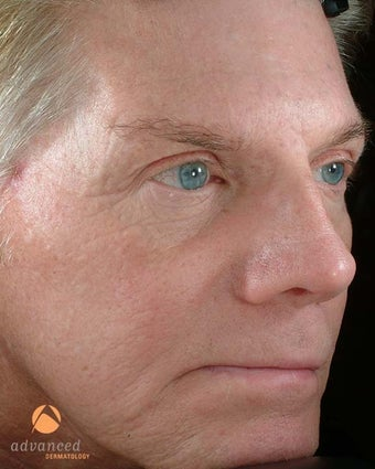 Male Treated with BOTOX® Cosmetic, Perlane® & Sculptra® after 1047016