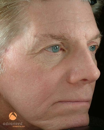 Male Treated with BOTOX® Cosmetic, Perlane® & Sculptra® before 1047016