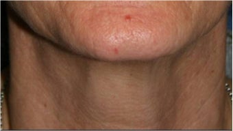 55 Year old female with aging neck due to neck bands.  She doesn't want a surgical neck lift after 766012