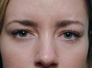 Botox for Frown Lines after 968632