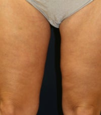 Thighplasty after 675703