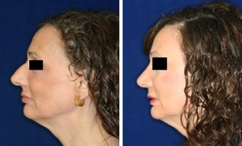 Nose Surgery before 1430825