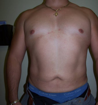 Vaser Liposuction after 313438