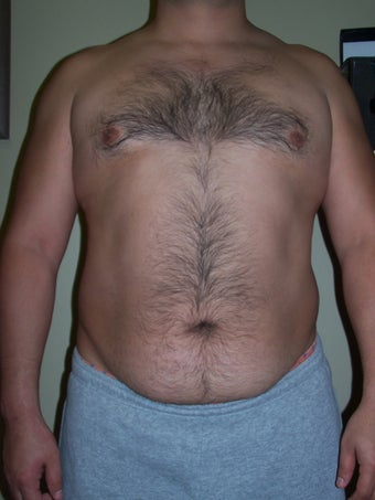 Vaser Liposuction before 313438