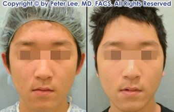 Ear Surgery (Otoplasty) before 1102768