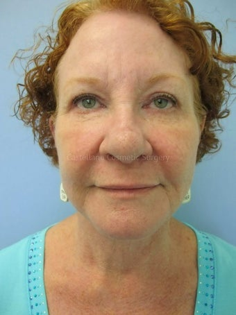 Woman, facelift and BOTOX procedure after 825431
