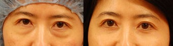 Lower eyelid surgery before 534605