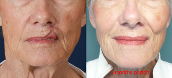 65-year-old with poor lip scarring repaired with local flap reconstruction before 672296
