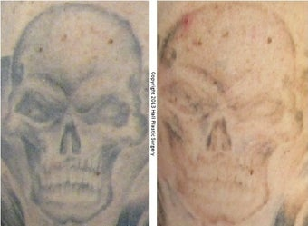 PicoSure Tattoo Removal After 1 Treatment before 1012420