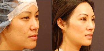 Asian Eyelid Surgery before 523920