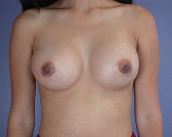 Breast Augmentation after 281392