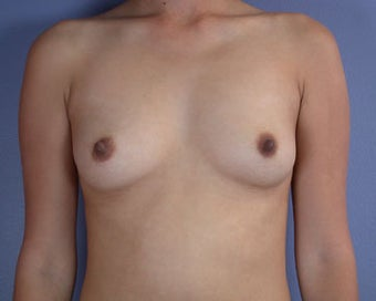 Breast Augmentation before 281392