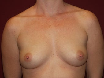 Breast Implants before 683150