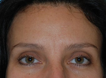 Botox and Dermal Filler to Frown Lines before 921863
