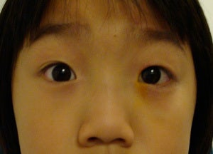 Ptosis surgery, asian eyelid surgery after 875940