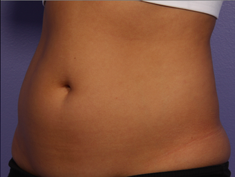 CoolSculpting by Zeltiq to Abdomen before 375538