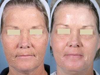 Laser Peel Treatments before 104658