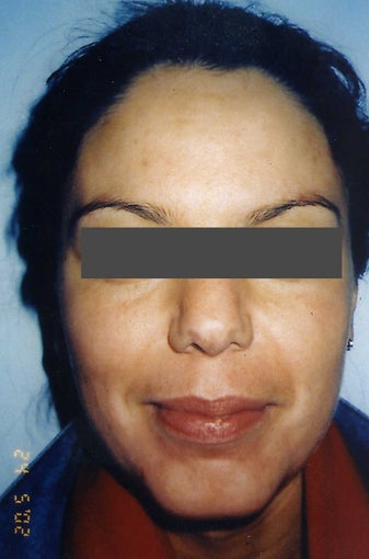 Hispanic woman 30-40 year old treated for Melasma and Acne Scars after 754265