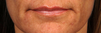 Restylane Lips before 417891