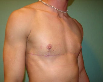 """Top Surgery"" FTM chest masculinization 867221"