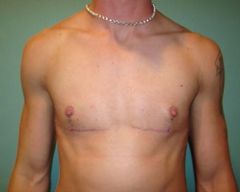 """Top Surgery"" FTM chest masculinization after 867221"
