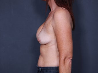 Breast Implant Revision 776761