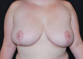 Breast Reduction after 949240
