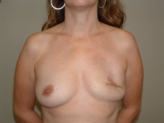 Breast Reconstruction before 735401