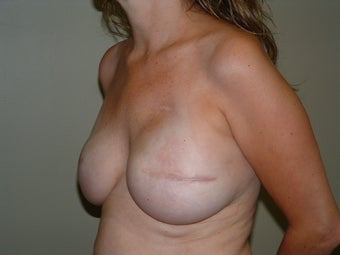 Breast Reconstruction 735401
