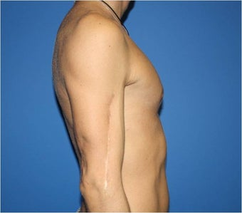 Pectoral Augmentation, Pec Implants after 665744