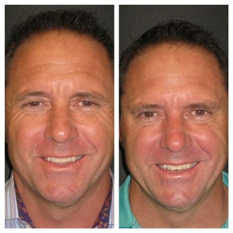 """Brotox""/Botox Before & After Overall Result before 1013845"