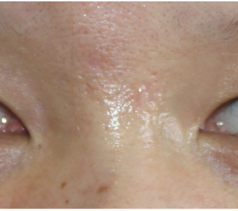 Facial Scar Removal/Treatment after 944169