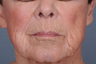 Dermabrasion for upper lip lines