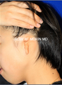 Ear Reconstruction: Microtia