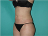 Liposuction 6 Months Post Operative