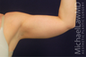 Liposuction of the Upper Arms