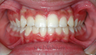 Invisalign Teen: 13 Year Old Treated for Underbite and Severe Crowding
