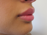 Lip Filler with Juvederm Volbella