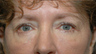 59 year old woman with lower lid bags treated with fat repositioning blepharoplasty